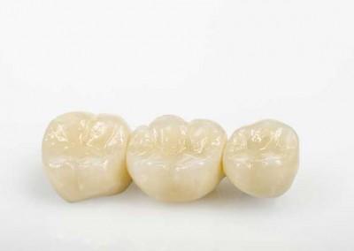 Eingliederung Ihrer neuen Zähne